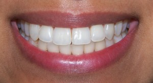 After 6 Month Braces  www.straightwhiteteeth-london.co.uk