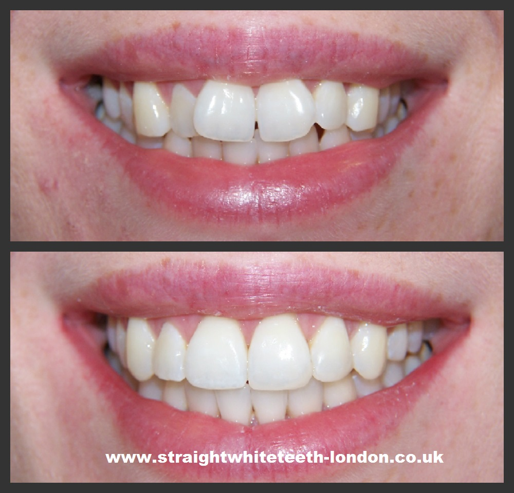 Get straight teeth - Do You Feel Uncomfortable About Smiling