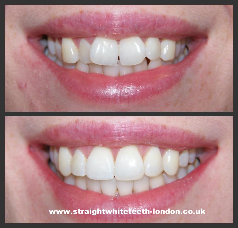 Wedding White Teeth: Dr Nick Simon's Six Month Smiles Blog