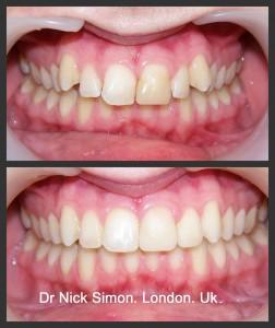 6 Month Braces, By Dr Nick Simon